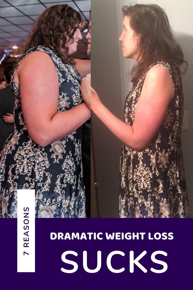 Weight Loss Sucks